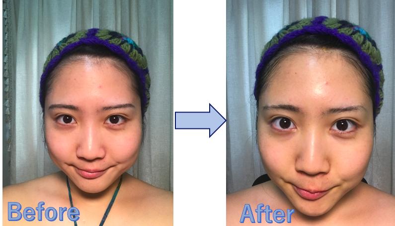 ターメリック顔パック(Before&After)